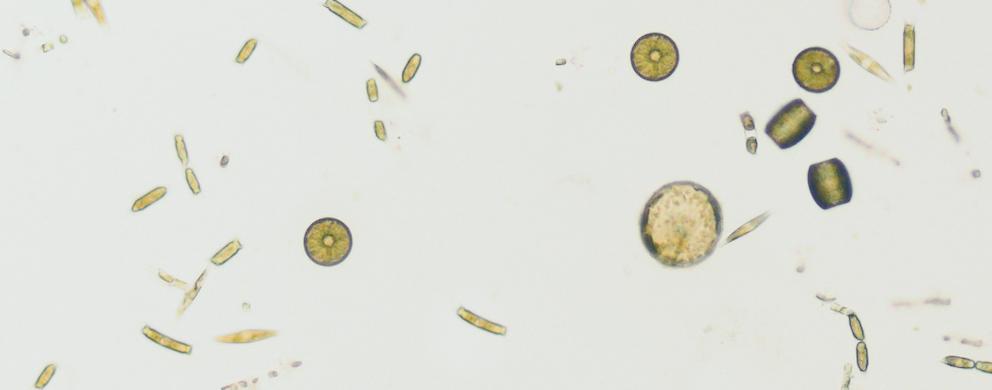 Culture d'algues. © UNamur