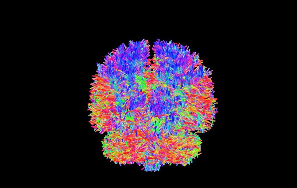 Connectome, reconstruction de connections entre les différentes régions cérébrales en imagerie de diffusion par résonance magnétique, Département de Radiologie, Imagerie médicale, ULB Hôpital Erasme