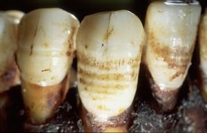 Lignes d'hypoplasie de l'émail dentaire sur les dents inférieures d'un religieux de l'abbaye des Dunes de Coxyde, 12-15e s. Les hypoplasies sont des marqueurs de stress (= malnutrition et/ou maladies) qui se sont produits durant l'enfance. Elles s'expriment sous forme de bandes horizontales d'émail moins épais . © collection IRSNB