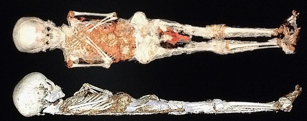 Examen médical aux Cliniques Saint-Luc (UCL) pour les momies du Cinquantenaire.(Cliquer pour agrandir)
