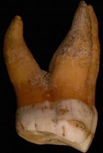 Molaire du Néandertalien Spy I, dont le tartre analysé a été prélevé en bas à droite  © IRSNB