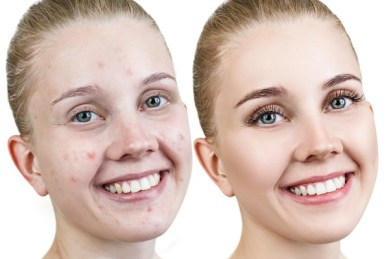 How To Get Rid Of Acne, Spots, Stretch Marks, Blemishes, Wrinkles Within Two Weeks
