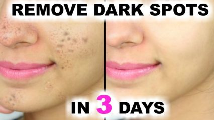 Most Effective Remedies For Dark Spots Removal
