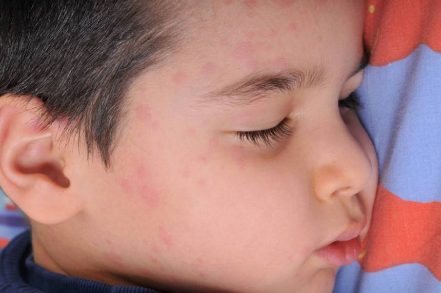 boy with measles
