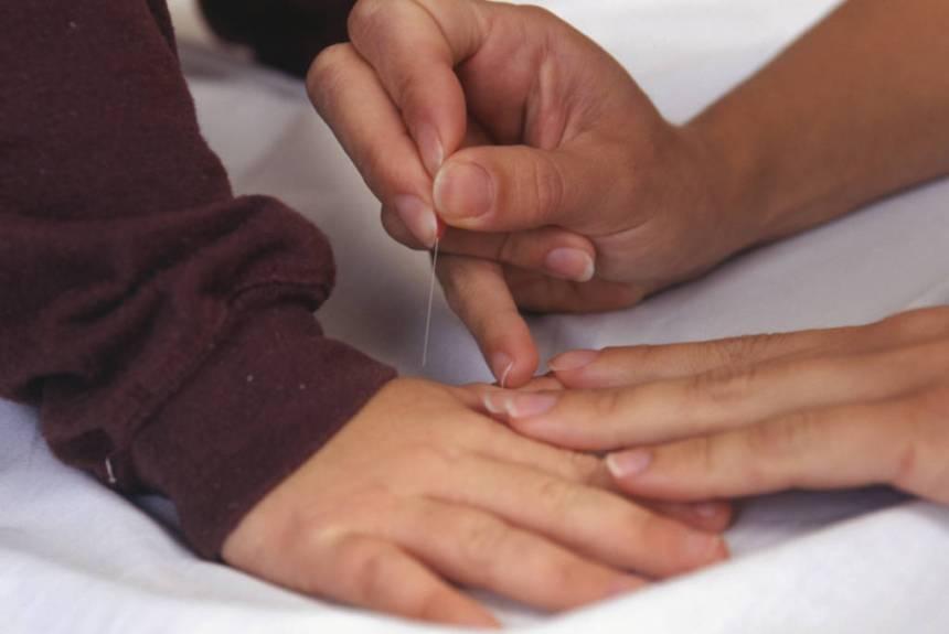 child receiving acupuncture