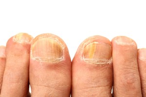 nail infection, athlete's foot