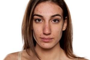 rosacea,problem skin, pimples