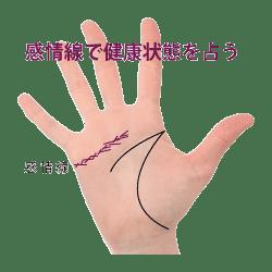 kannzyousen_byousen