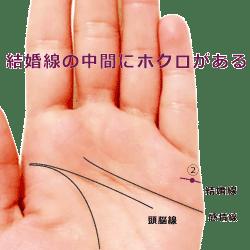 結婚線の中間地点にホクロがある手相の見方