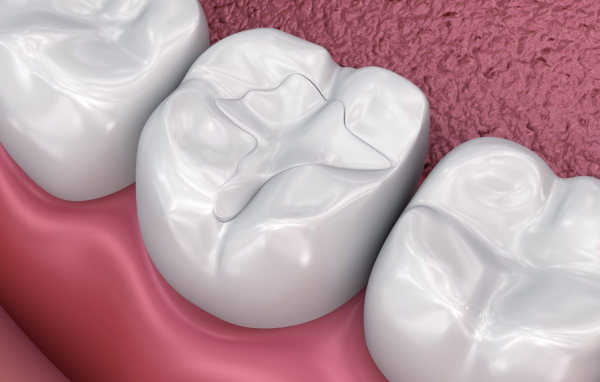 Dental fissure tooth color fillings in lake forest ca