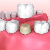 Dental crown restoration process on patient in lake forest