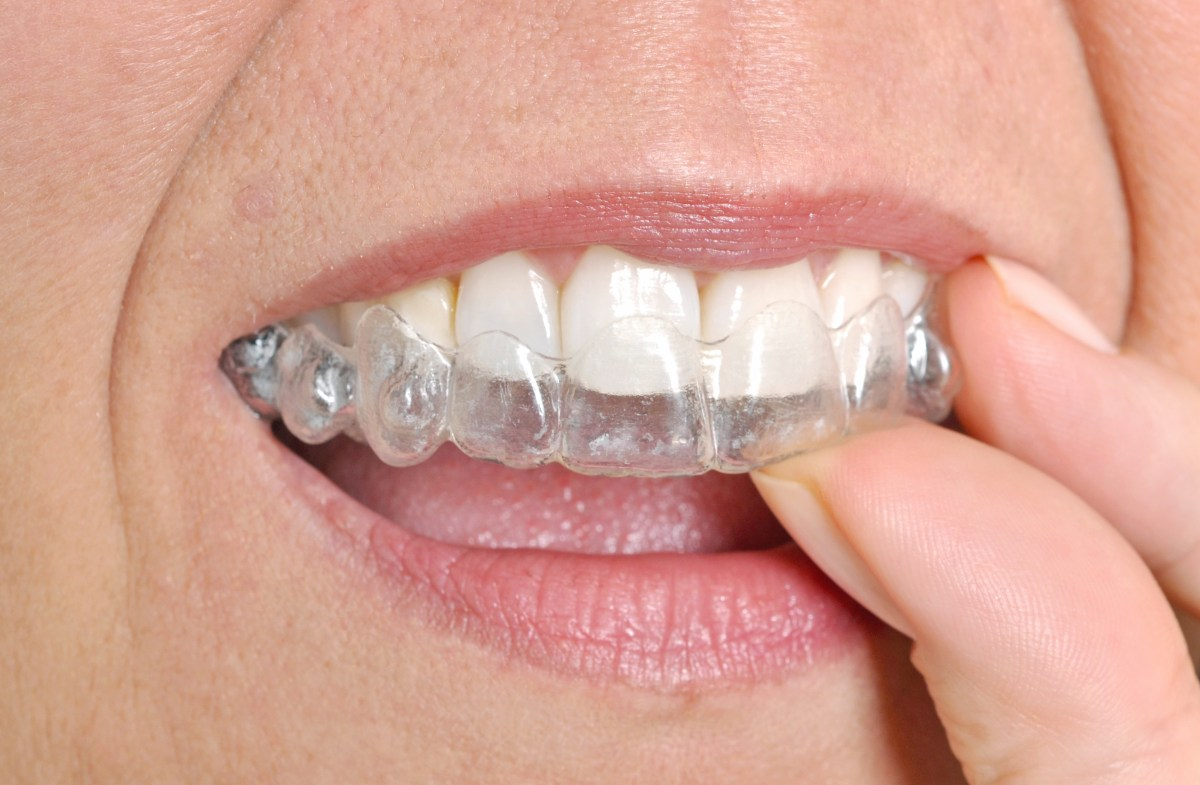 lake-forest-invisalign.jpeg?fit=1200%2C785&ssl=1