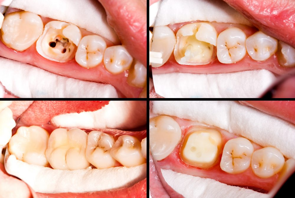 Before and after root canal treatment by dentist in lake forest ca