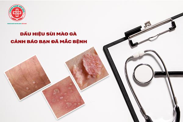 www.123nhanh.com: Sùi mào gà là bệnh gì, địa chỉ điều trị sùi mào gà tại đ
