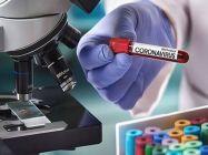 آکسفورڈ یونیورسٹی میں کورونا وائرس کی ویکسین تیار