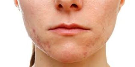 Hormonal acne predominant on the lower face