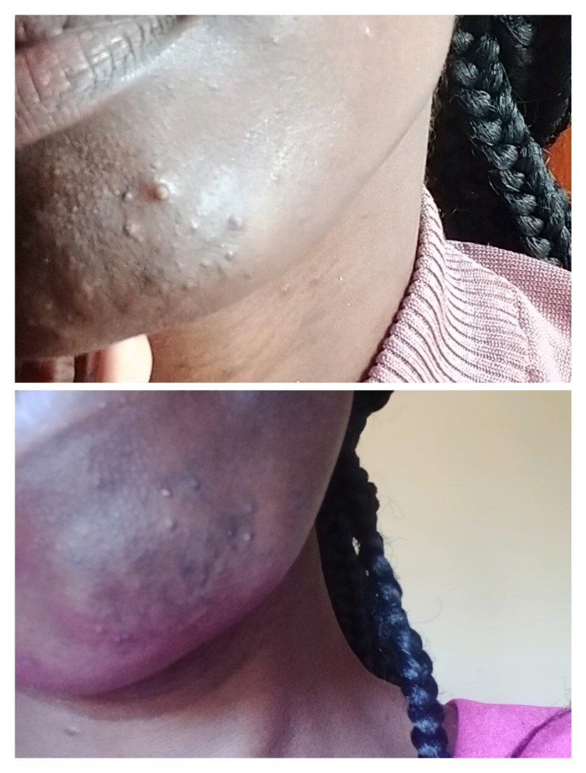 Can You Get Rid Of A Pimple Overnight? See My Results With ROSEN Skincare Break-Out Spot Treatment!Can You Get Rid Of A Pimple Overnight? See My Results With ROSEN Skincare Break-Out Spot Treatment!