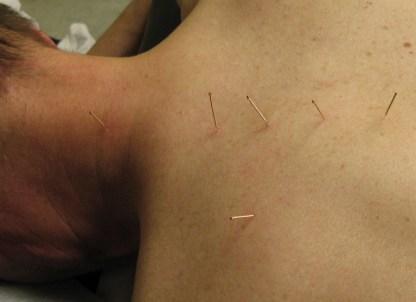 needles inserted.jpg