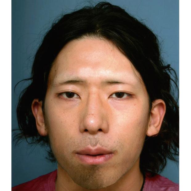 Gưσng mặt cὐa tên Tatsuya sau 2 nᾰm đᾶ cό quά nhiều thay đổi.