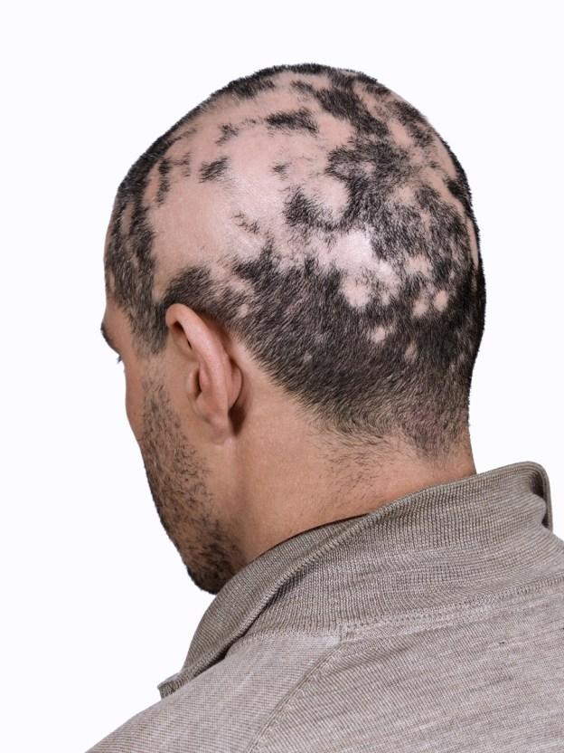 Hair Loss In Lyme Disease The Last Straw Daniel Cameron Md Mph