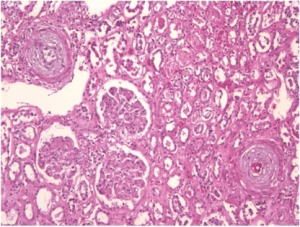 renal-bx-scleroderma-renal-crisis