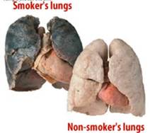 Compare Smokers Lungs with a Non-Smokers Lung