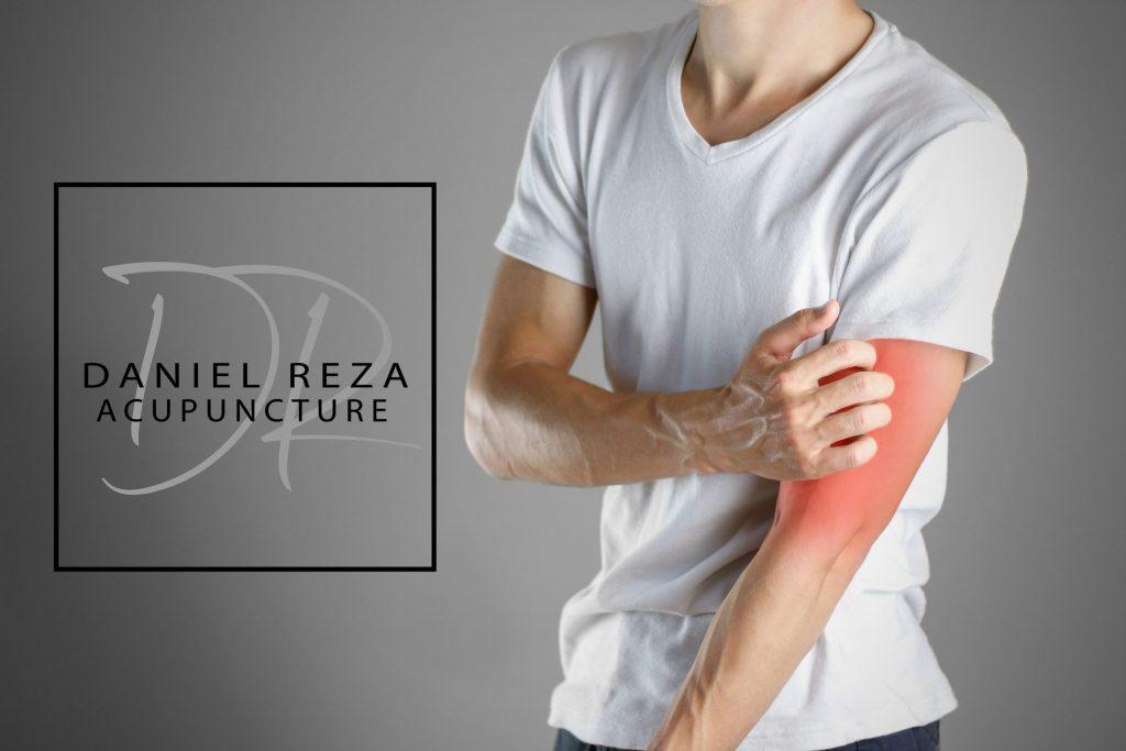Tenis elbow