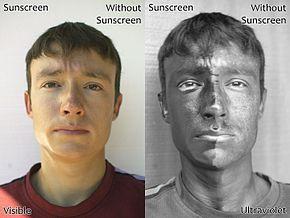Efek Negatif Sinar Matahari Terhadap Kulit