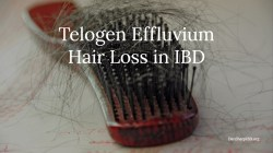 Telogen Effluvium Hair Loss in IBD