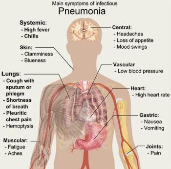 Main_symptoms_of_infectious_pneumonia
