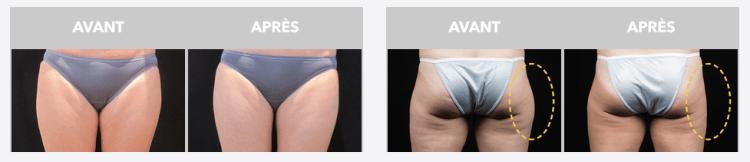 Le Coolsculpting la nouvelle méthode pour faire disparaître la graisse et les bourrelets avant apres fesses avis blog