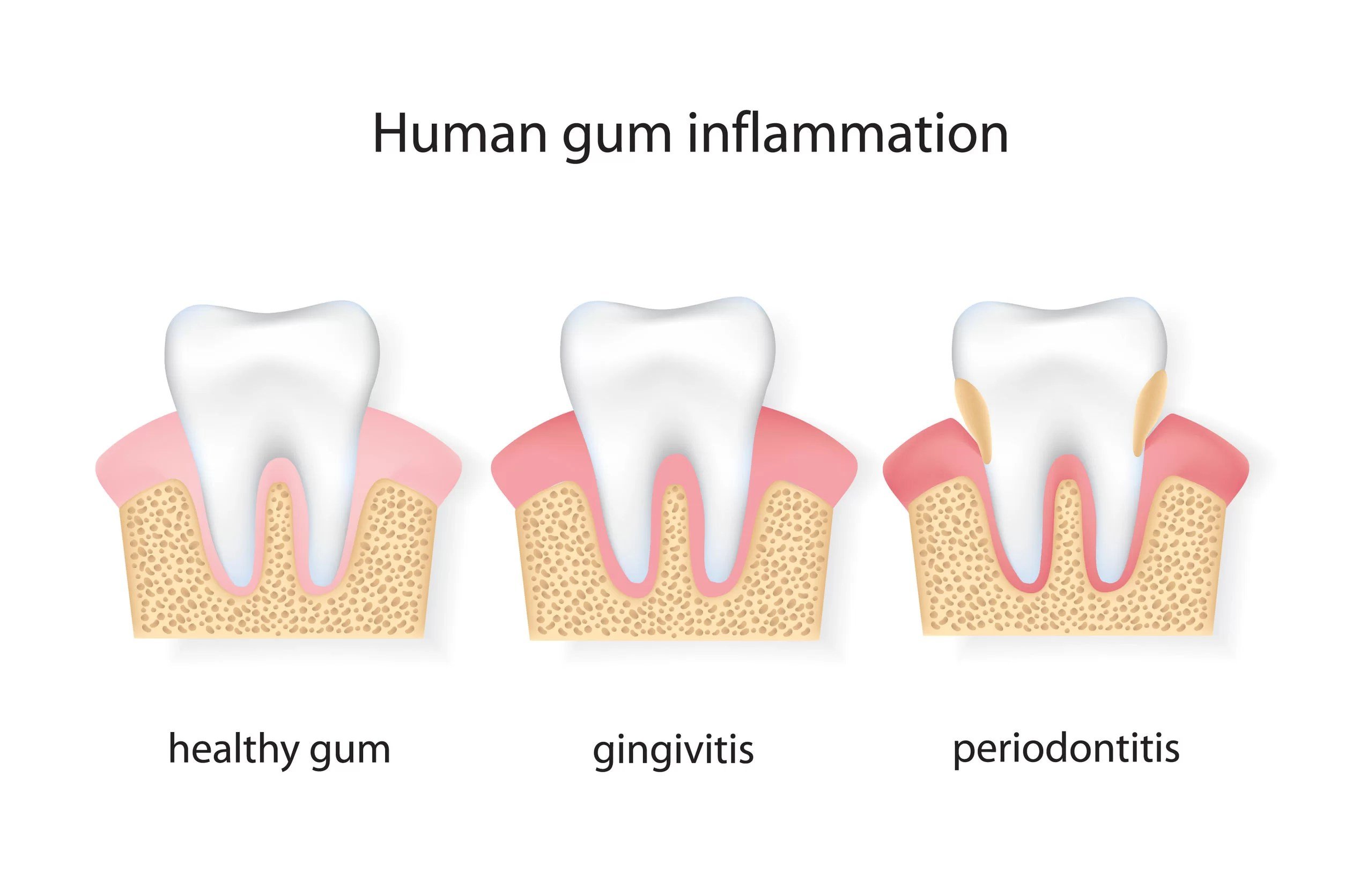 teeth cleaning for healthy gums