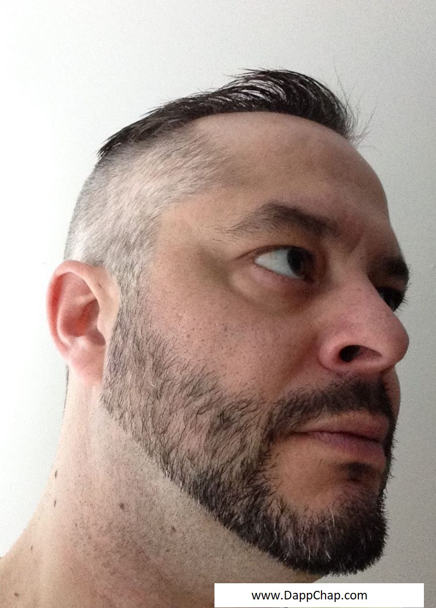 Receding Hairline Fix How to Grow an Undercut That Conceals