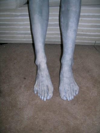 six_toed_foot_flash.sized