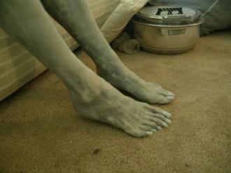 six_toed_foot_profile.sized