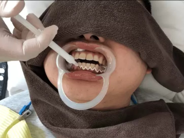 スターホワイトニング 歯茎保護クリーム 塗る
