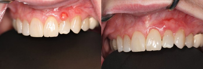 Before and after Gingival Grafts Zionsville
