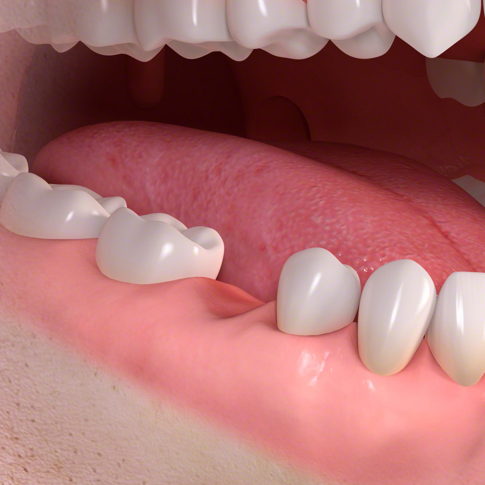 Implant-supported_single-tooth_treatment_01