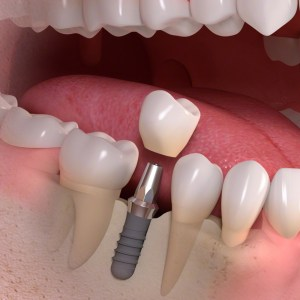 Implant-supported_single-tooth_treatment_03