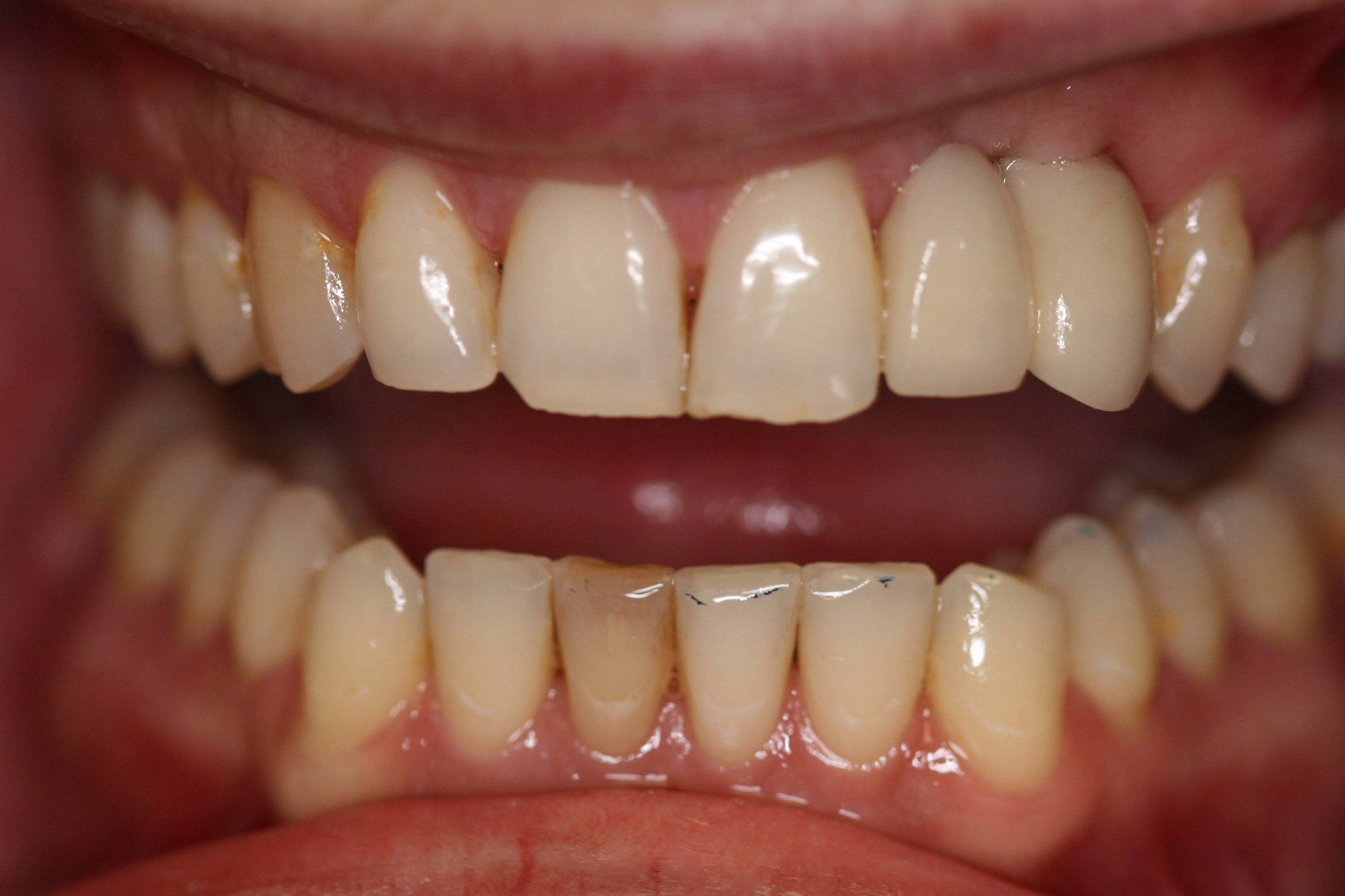 Implant 2b Dental Implants Near Me Zionsville