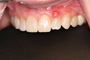 Raised area on Gingiva
