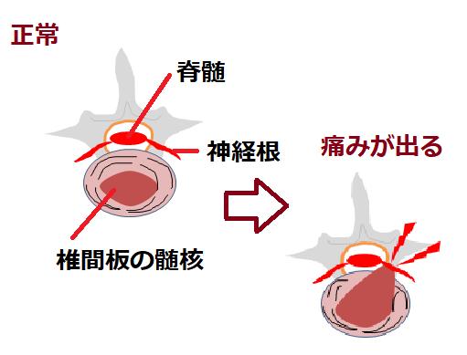 痛みが出る時の椎間板の図