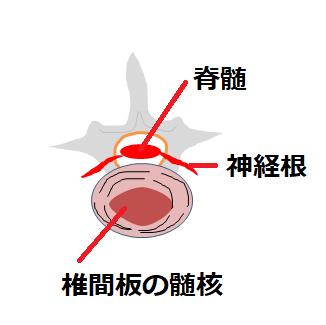 髄核の挿絵
