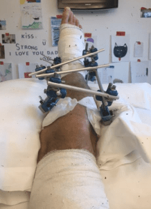 The contraption survivor Greg Krentzman lived with for two months as doctors did everything they could to save his leg.
