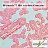 Blut nach 70 Minuten vor dem Computer. Gedrolleneffekt ist deutlich zu sehen. Die roten Blutkörper verklebe. Es ergibt sich eine schlechte Mikrozirkulation.