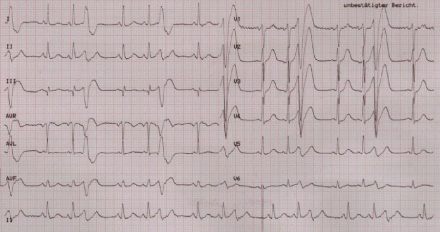 EKGcase1_pic1.png