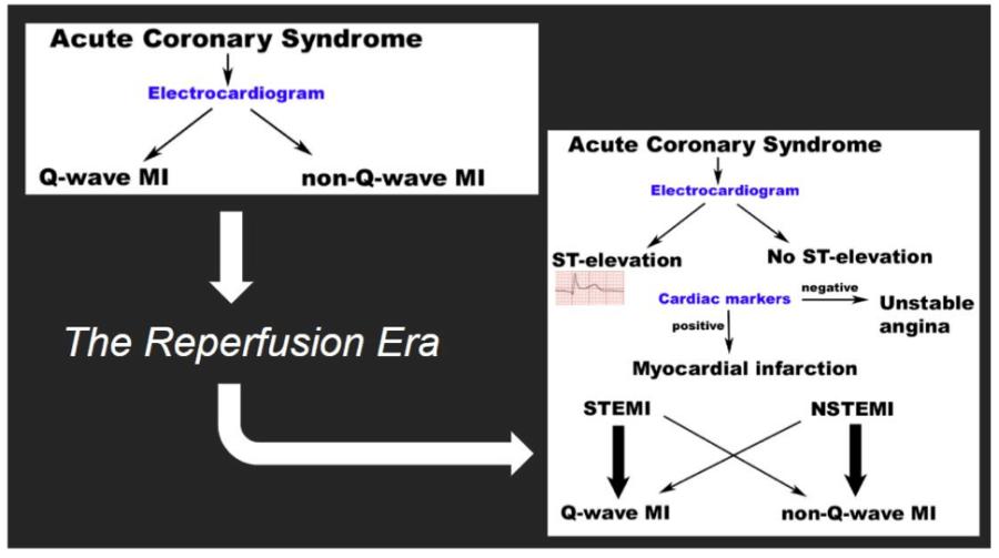 q_wave STEMI