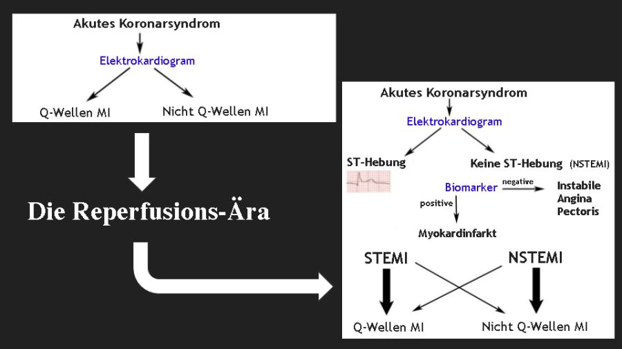 reperfusion-era translation