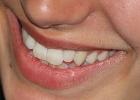 The Libby Group - Teeth Whitening Services