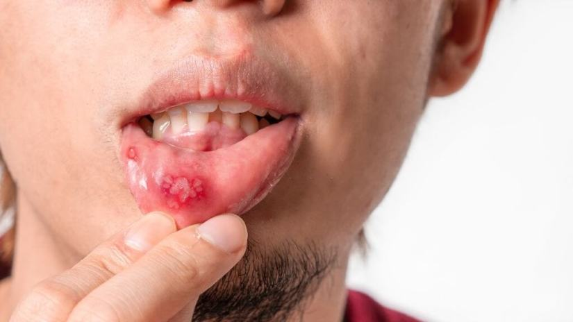 COVID-19: 2 More Cases Of Mucosal Skin Ulcers Reported